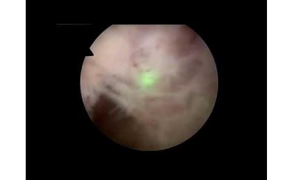 prostat,prostate,laser,lazer,HoLEP